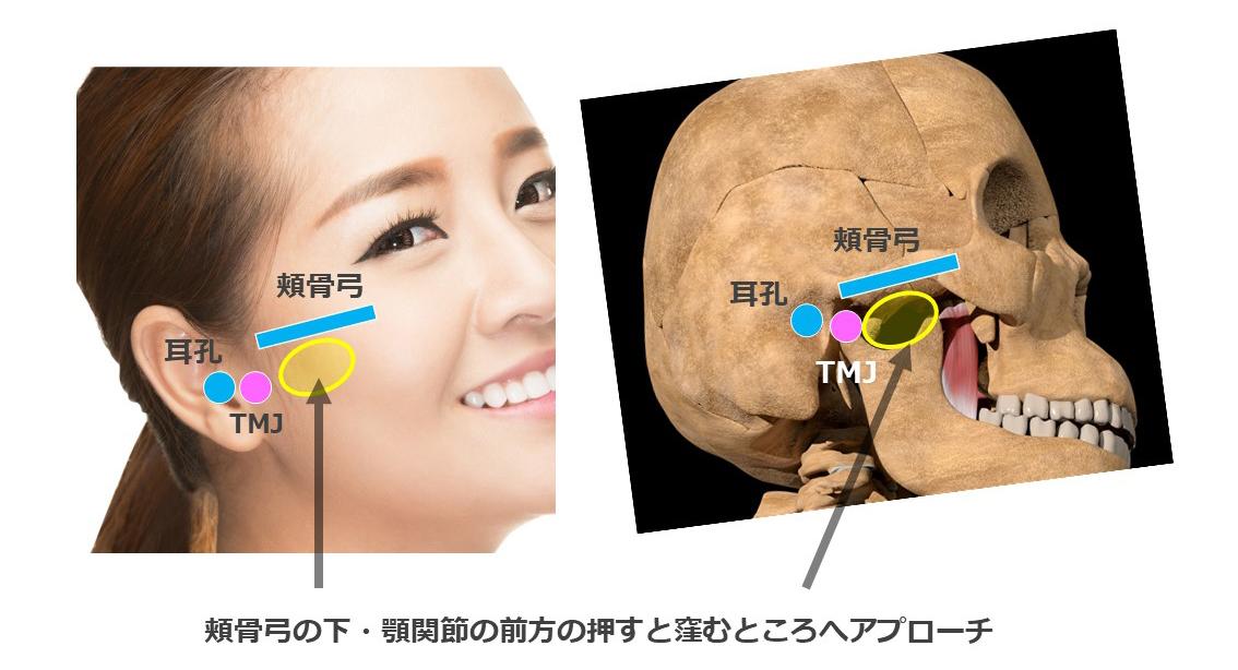 翼状筋窩と下顎切痕