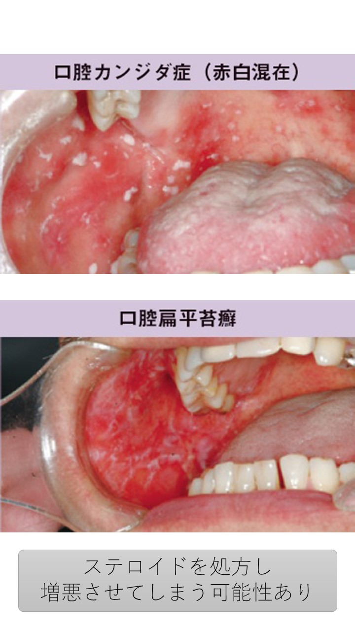 20 扁平苔癬と口腔カンジダ症