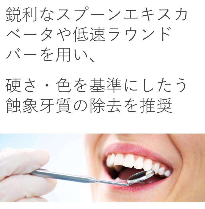 歯質の硬さや色は、除去すべきう蝕象牙質の診断基準となりますか?