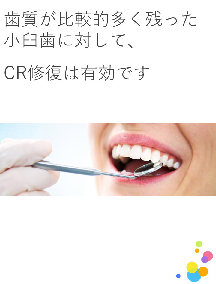 根治後の臼歯部修復にCRは有効ですか?