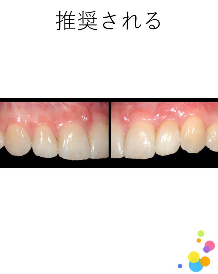 欠損部位の違いにかかわらず、接着ブリッジを用いた補綴歯科治療は推奨されますか?