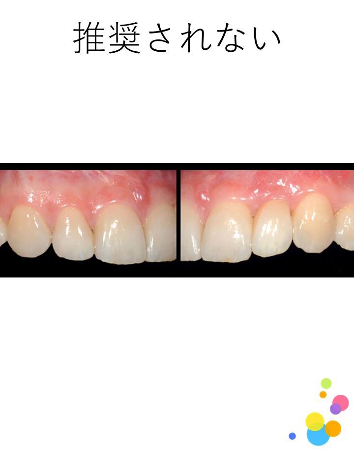2歯以上の中間欠損に対して,接着ブリッジの適用は推奨されますか?