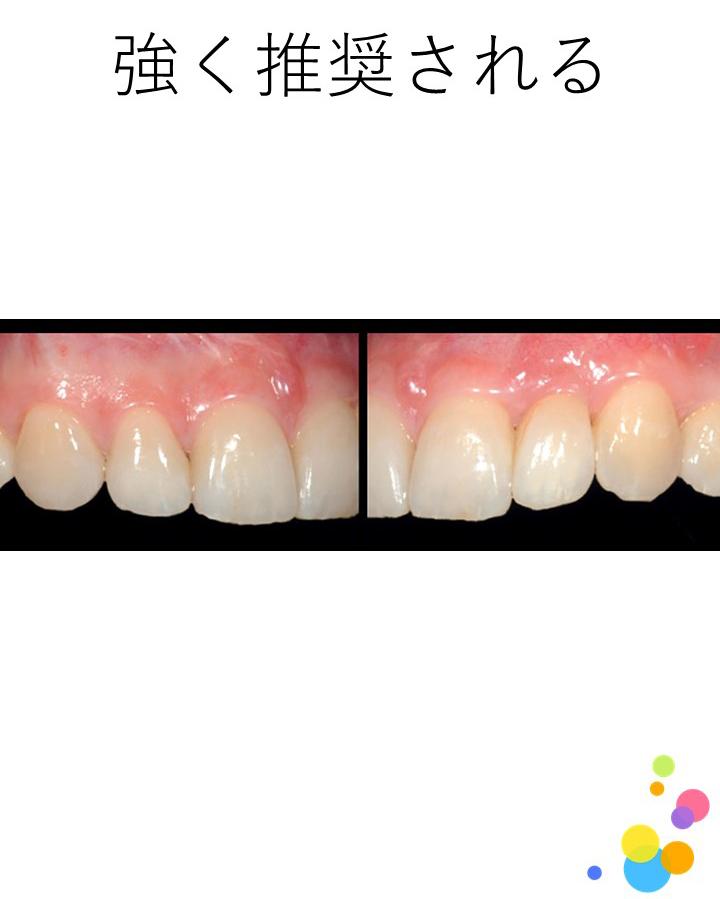 支台歯形成に際して,エナメル質に限局した形成は推奨されるか?
