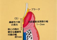 患者さんにやさしい歯周治療 ー歯根膜を考慮した歯周治療ー