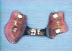 磁性アタッチメントの臨床応用