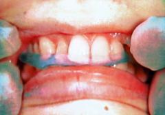 顎関節症 ースプリント療法を中心としてー