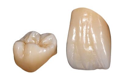 ラヴァ™アルティメットレストラティブ歯科切削加工用レジン材料