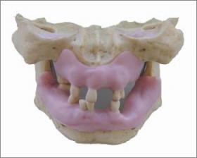 インプラント実習用顎模型