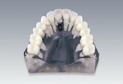 単歯欠損 インプラントvsブリッジ