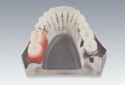 遊離端欠損 インプラントvs部分義歯