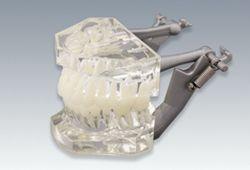 複製根歯牙着脱模型