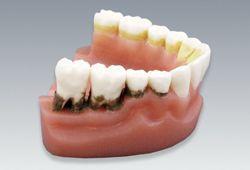 歯周疾患と歯磨き指導模型(下顎のみ・2倍大)