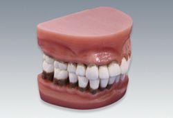 歯周疾患分類模型(2倍大)