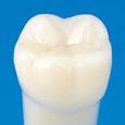 単根模型歯 永久歯(ネジなし) [A5-500]