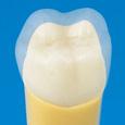 切削用模型歯(ネジなし) [A20-500]