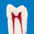 歯内療法用模型歯(ネジなし) [A12-500]