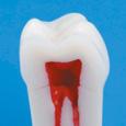 歯内療法用模型歯(ネジなし) [A22-500]