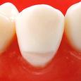 楔状欠損模型歯 [A55A-139B, 149B, 239D]