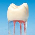 歯根管模型 [S12-500]