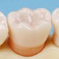 2色単根模型歯 [A13A-500]