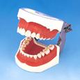 歯周外科用顎模型 [P15FE-004-PS]