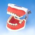歯周外科用顎模型 [P15FE-901C]