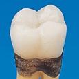 解剖学的単根模型歯 [B1A-901C]