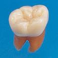 複製根模型歯 [B2-306]