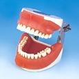 口腔外科用顎模型 [P15FE-OOP.1]