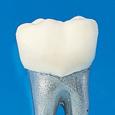 タイポドント用模型歯 [B9-500]