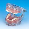 小児歯科用顎模型 [D75FE-SW.K.14]