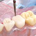単根模型歯 乳歯 [A3A-310]
