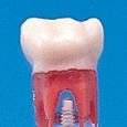 歯髄切断用乳歯模型歯 [A24A-204]