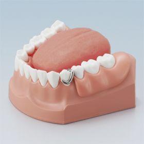 口腔ケア指導顎模型 [PE-STP011]