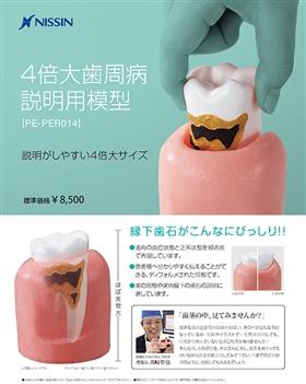 4倍大歯周病説明用模型 [PE-PER014]